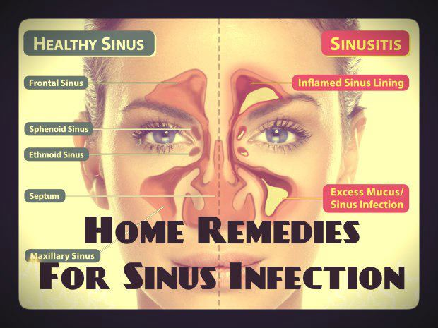 How to reduce sinus infection swelling naturally